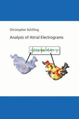 Analysis Of Atrial Electrograms