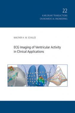ECG Imaging Of Ventricular Activity In Clinical Applications