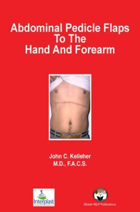 Abdominal P edicle Flaps To The Hand And Forearm