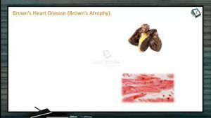 Body Fluids And Circulation - Other Heart Defects And Disorders (Session 12)