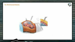 Reproductive Health - Reproductive Health - Problems And Strategies Part 3 (Session 1)